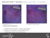 melanovine participant 4 slide 1