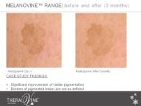 melanovine participant 4 slide 2